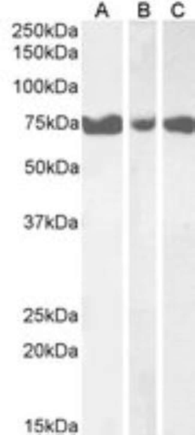 anti-IP3KC, Polyclonal, Novus Biologicals 0.1mg; Unlabeled:Life Sciences
