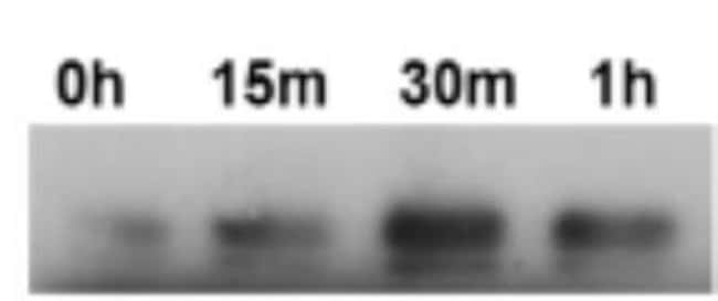 anti-IRE1 alpha, Polyclonal, Novus Biologicals:Antibodies:Primary Antibodies