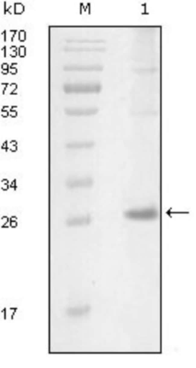 anti-ITK, Clone: 5G12C4, Novus Biologicals 0.1mL; Unlabeled:Antibodies