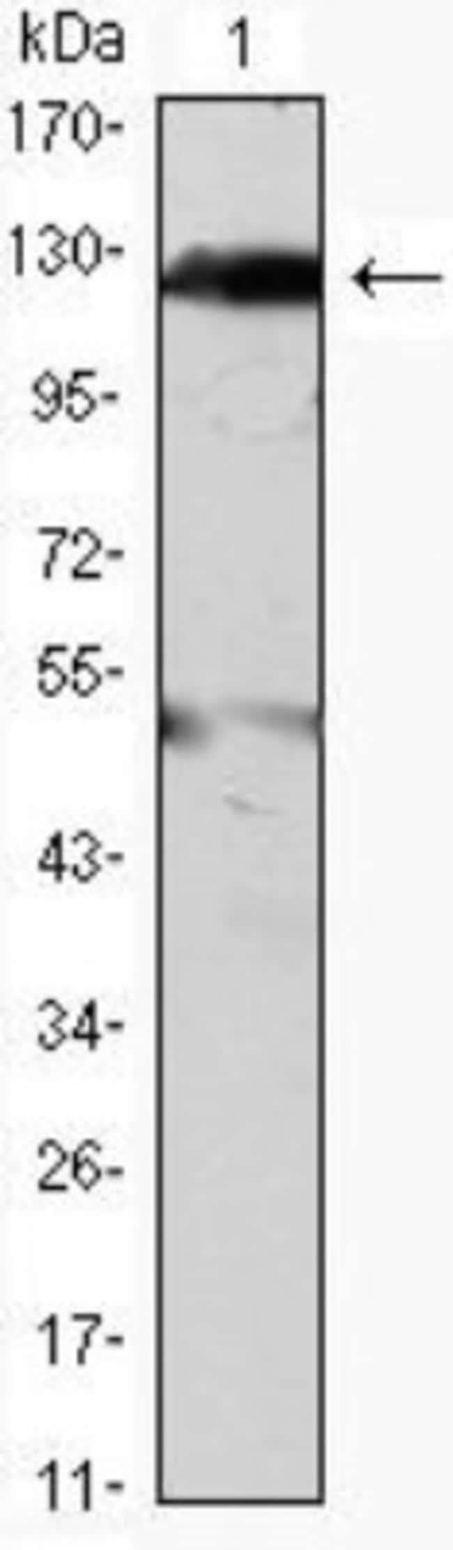 anti-Jak2, Clone: 1C1, Novus Biologicals 0.1mL; Unlabeled:Life Sciences