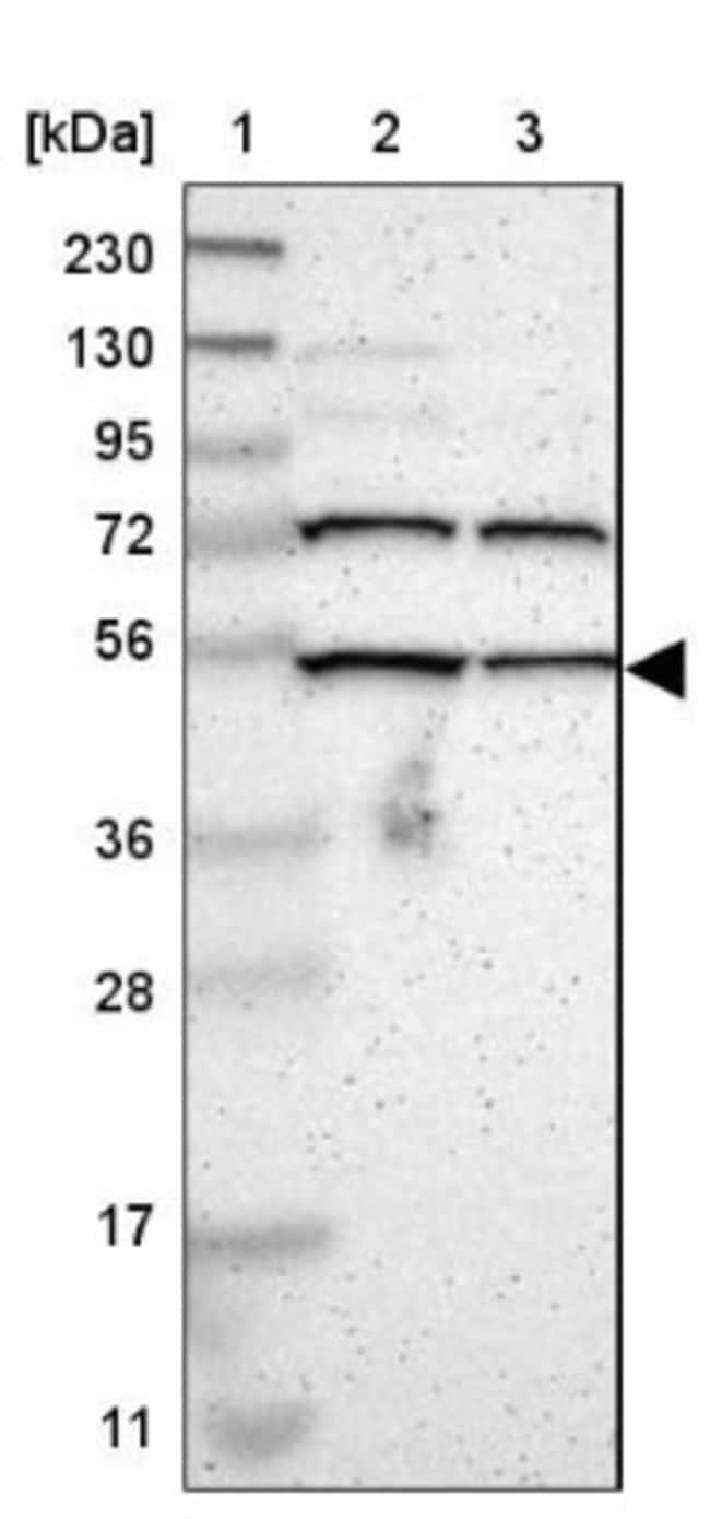 anti-KIAA0494, Polyclonal, Novus Biologicals 0.1mL; Unlabeled:Life Sciences