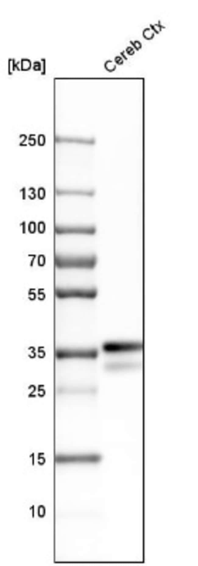 anti-Kilon/NEGR1, Polyclonal, Novus Biologicals 0.1mL; Unlabeled:Life Sciences