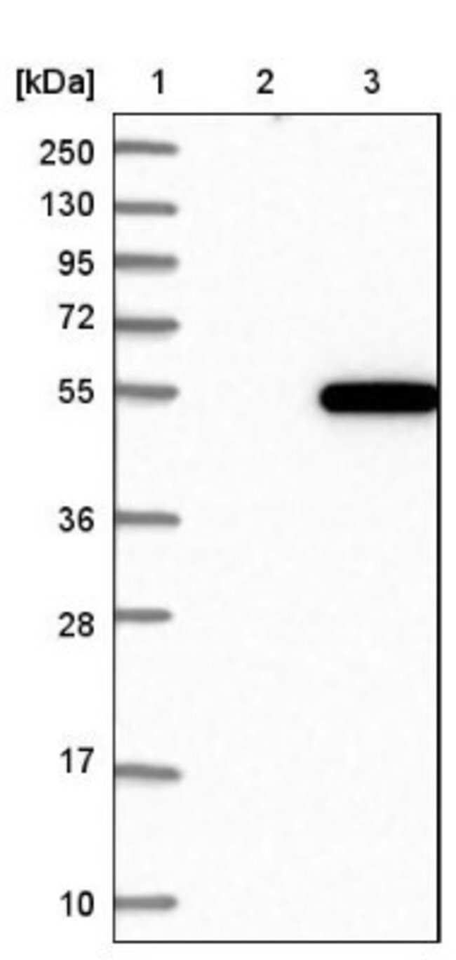anti-LANCL2, Polyclonal, Novus Biologicals 0.1mL; Unlabeled:Life Sciences