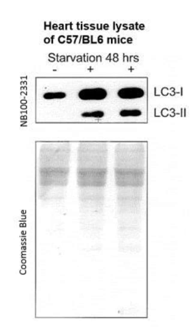 LC3A Rabbit anti-Human, Mouse, Rat, Canine, Fish, Plant, SARS-CoV, Zebrafish,