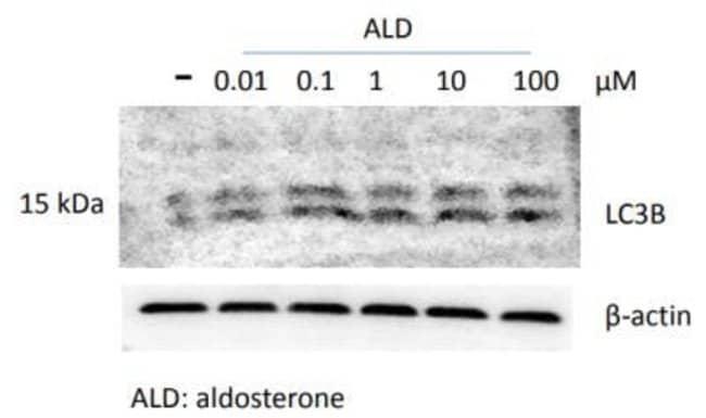 anti-LC3B/MAP1LC3B, Polyclonal, Novus Biologicals:Antibodies:Primary Antibodies