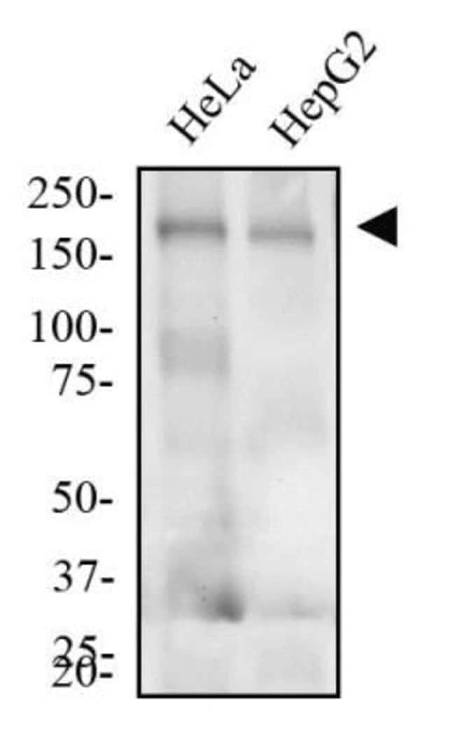 anti-LDL R, Clone: C7, Novus Biologicals 0.1mL; Unlabeled:Life Sciences