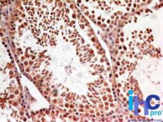 LIN-28A Rabbit anti-Human, Mouse, Primate, Polyclonal, Novus Biologicals:Antibodies:Primary