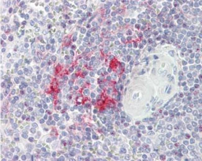 anti-LITAF, Polyclonal, Novus Biologicals 0.1mg; Unlabeled:Life Sciences
