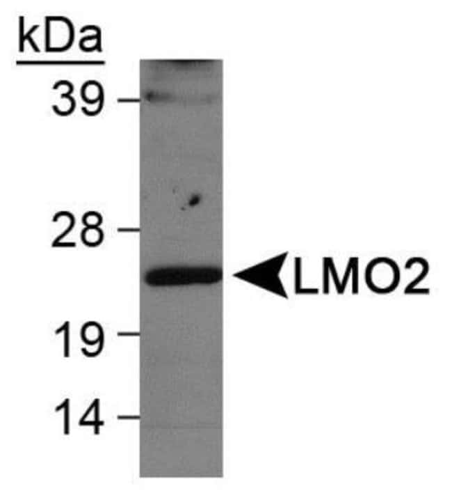 anti-LMO2, Polyclonal, Novus Biologicals:Antibodies:Primary Antibodies