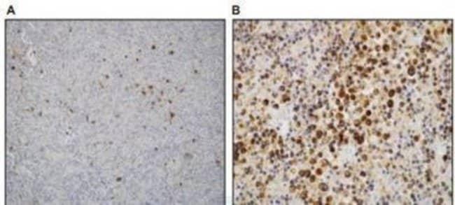 Rabbit anti-LMP1, Clone: S20-D, Novus Biologicals 100µL; Unlabeled:Life