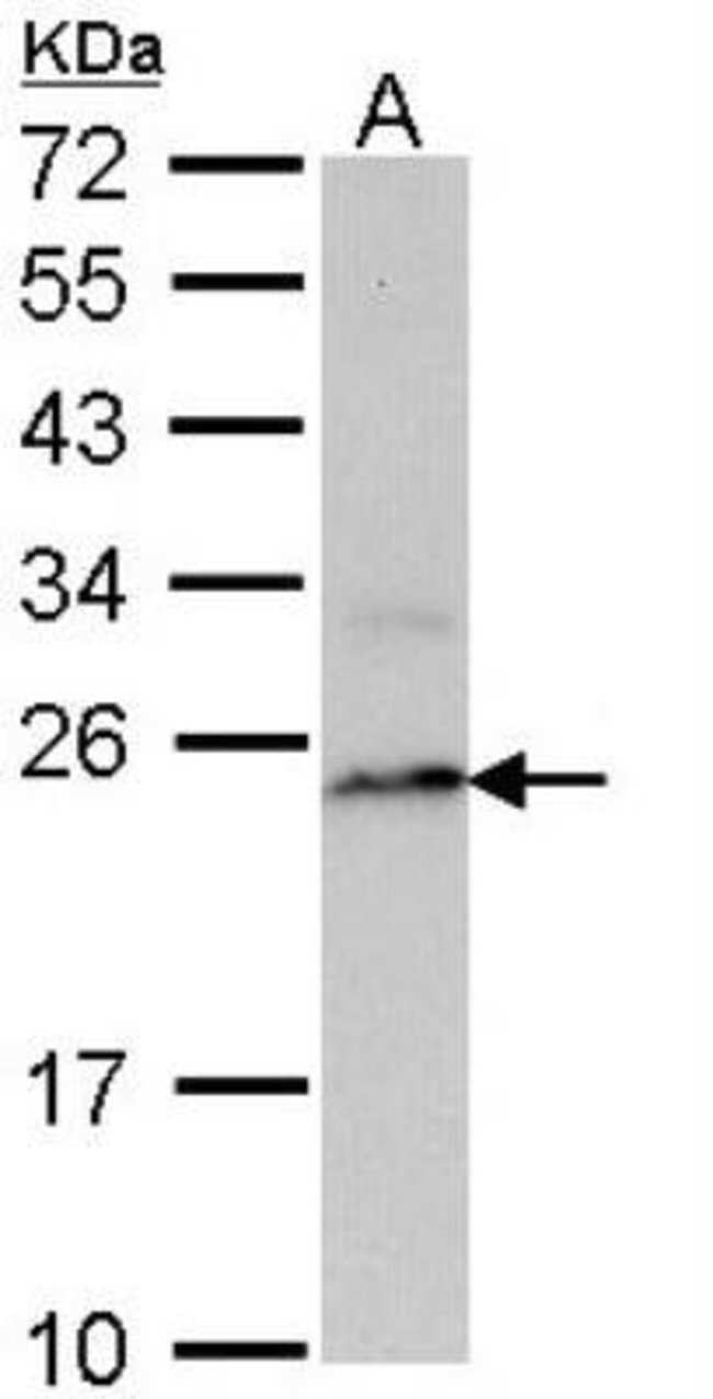 anti-LMP7/PSMB8, Polyclonal, Novus Biologicals 0.1mL; Unlabeled:Life Sciences