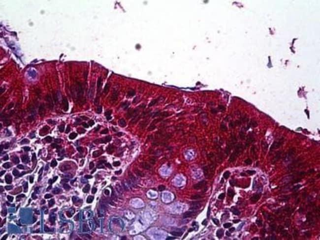 anti-LRP-4, Polyclonal, Novus Biologicals 0.1mg; Unlabeled:Life Sciences