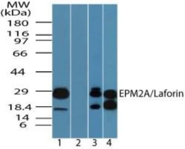 anti-Laforin/EPM2A, Polyclonal, Novus Biologicals:Antibodies:Primary Antibodies