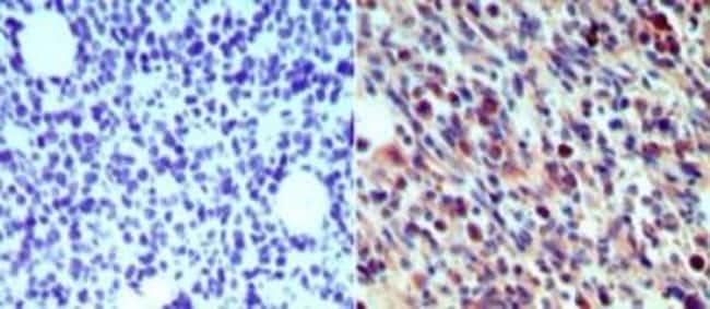 anti-Langerin/CD207, Polyclonal, Novus Biologicals:Antibodies:Primary Antibodies