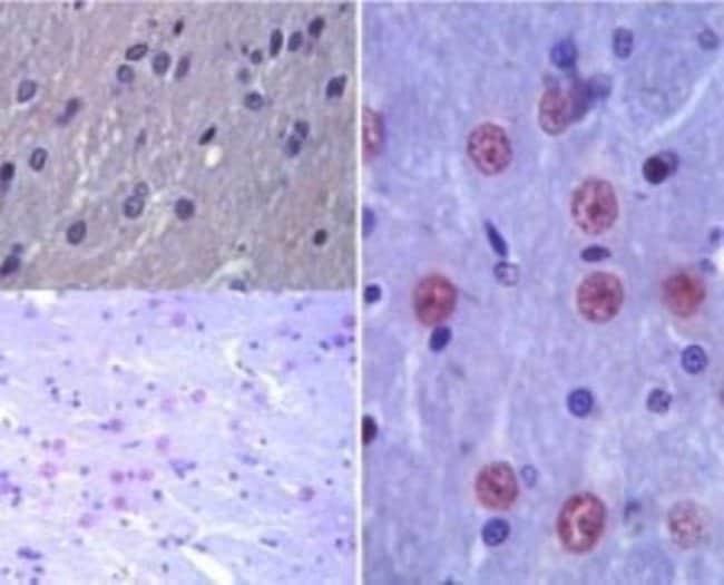 anti-Latexin, Polyclonal, Novus Biologicals:Antibodies:Primary Antibodies