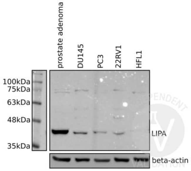 anti-Lipase A, Polyclonal, Novus Biologicals 0.1mL; Unlabeled:Life Sciences