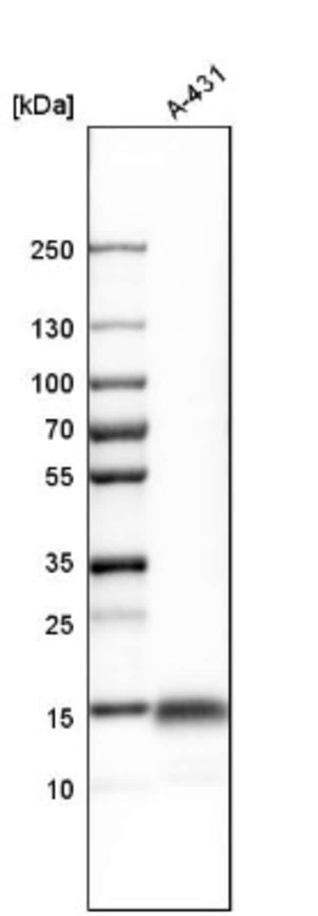 anti-Ly-6D, Polyclonal, Novus Biologicals 0.1mL; Unlabeled:Life Sciences
