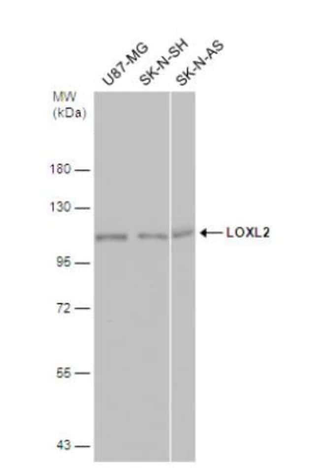 anti-Lysyl Oxidase Homolog 2/LOXL2, Polyclonal, Novus Biologicals 0.1mg;