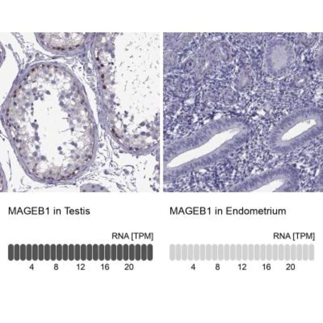 anti-MAGEB1, Polyclonal, Novus Biologicals 0.1mL; Unlabeled:Life Sciences