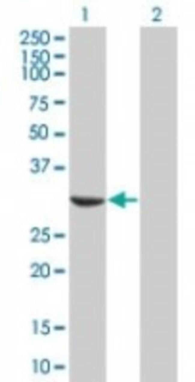 anti-MAPRE1, Polyclonal, Novus Biologicals:Antibodies:Primary Antibodies