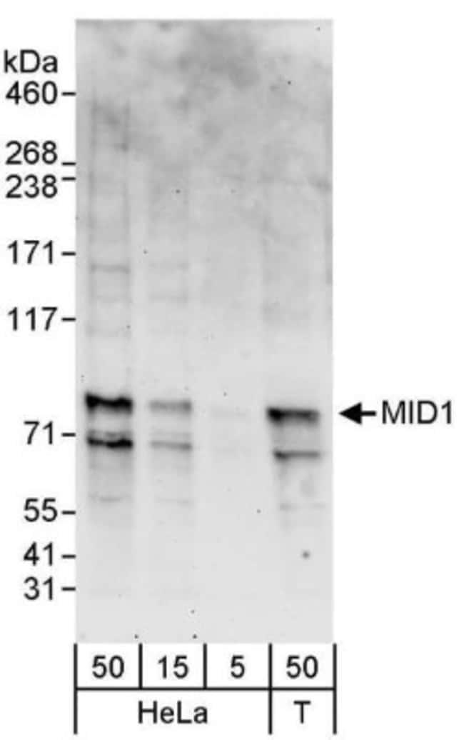 anti-MID1, Polyclonal, Novus Biologicals 0.1mg; Unlabeled:Life Sciences