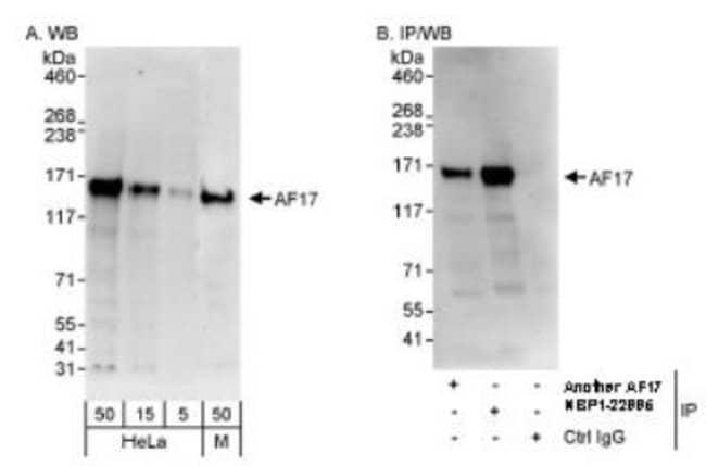 anti-MLLT6, Polyclonal, Novus Biologicals 0.1mg; Unlabeled:Life Sciences