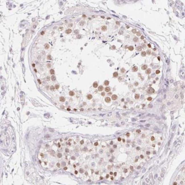 anti-MORC1, Polyclonal, Novus Biologicals 0.1mL; Unlabeled:Antibodies
