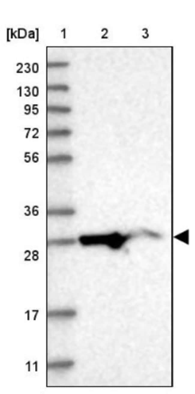 anti-MRPL10, Polyclonal, Novus Biologicals 0.1mL; Unlabeled:Life Sciences