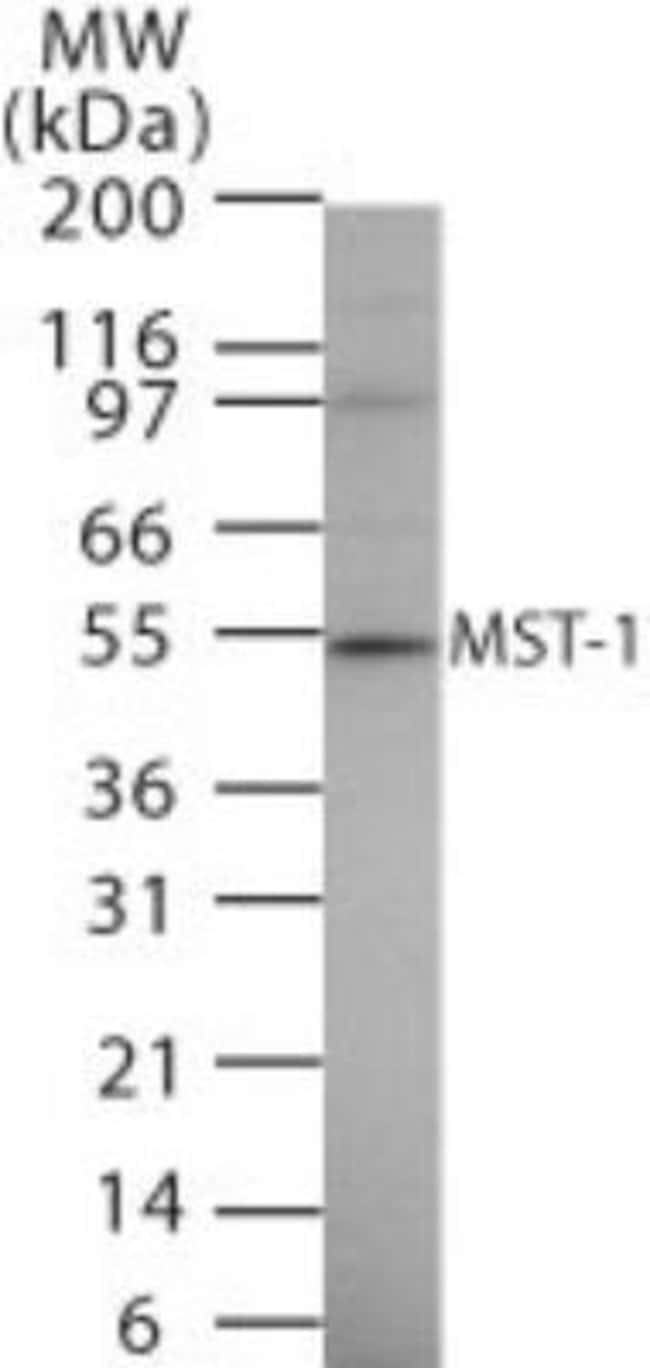 anti-MSP/MST1, Polyclonal, Novus Biologicals:Antibodies:Primary Antibodies
