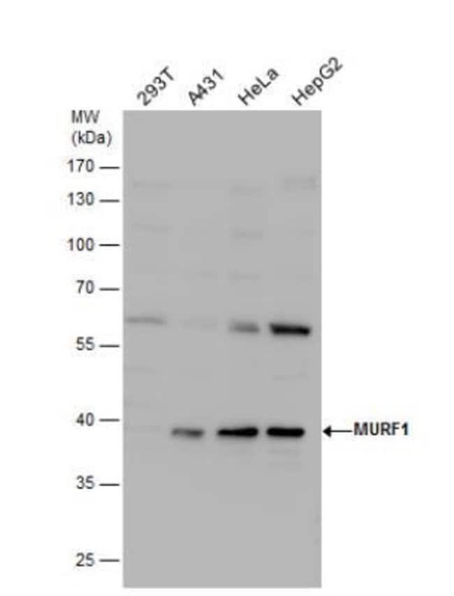 MuRF1/TRIM63 Rabbit anti-Human, Mouse, Rat, Porcine, Squirrel, Polyclonal,