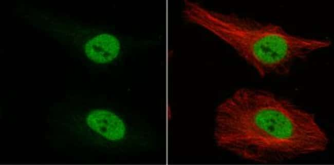 anti-Musashi-1, Polyclonal, Novus Biologicals 0.1mL; Unlabeled:Life Sciences