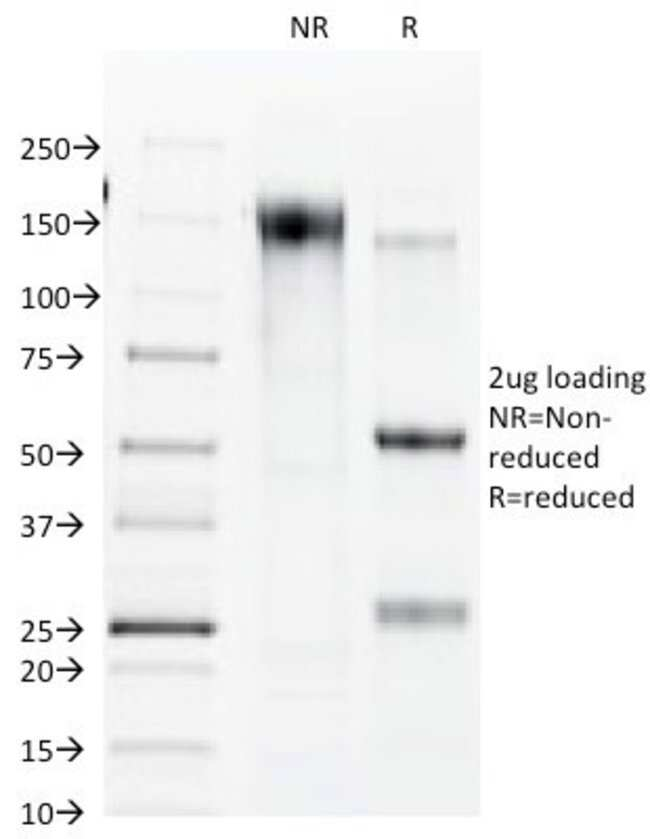 Myelin Protein Zero Rat anti-Mouse, Rat, Clone: R5.21C, Novus Biologicals::