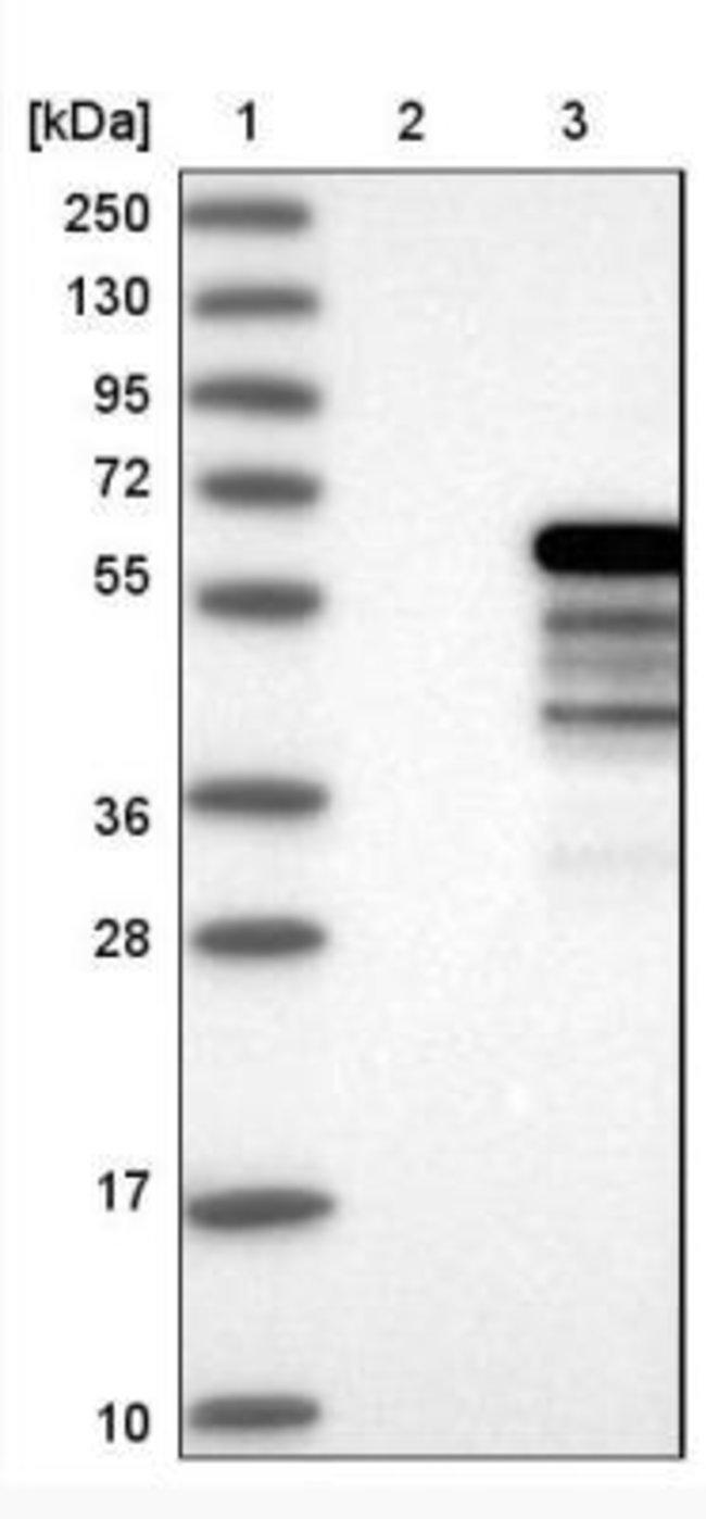 anti-NAB1, Polyclonal, Novus Biologicals 0.1mL; Unlabeled:Life Sciences