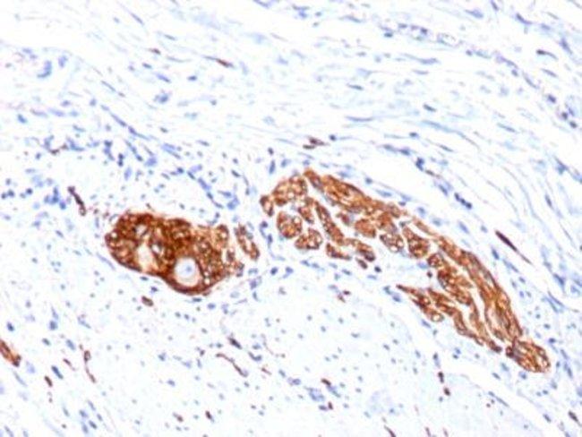 Mouse anti-NCAM-1/CD56, Clone: 123c3.D5+123A8, Azide Free, Novus Biologicals:Antibodies:Primary