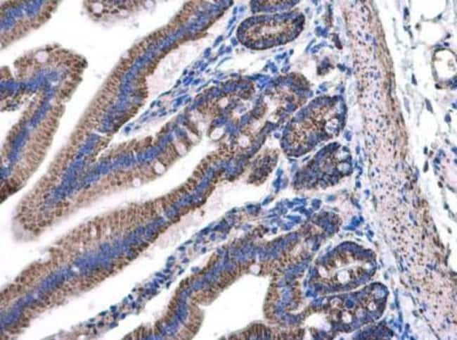 anti-NDUFAB1, Polyclonal, Novus Biologicals 0.1mg; Unlabeled:Life Sciences