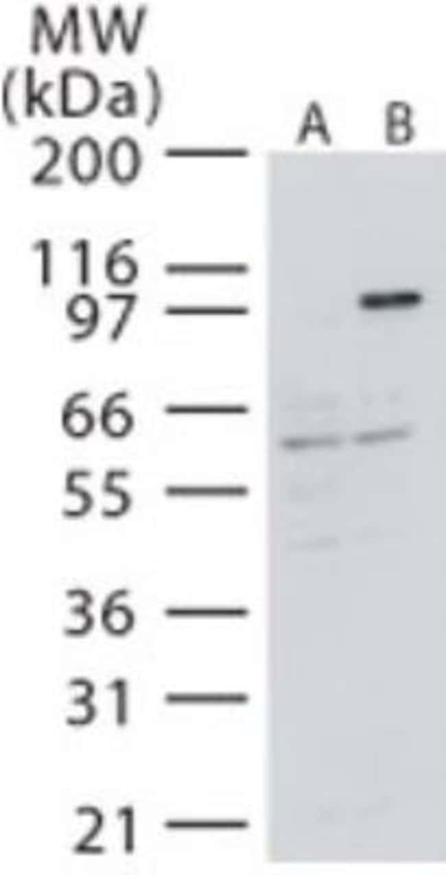 anti-NIK/MAP3K14, Polyclonal, Novus Biologicals:Antibodies:Primary Antibodies