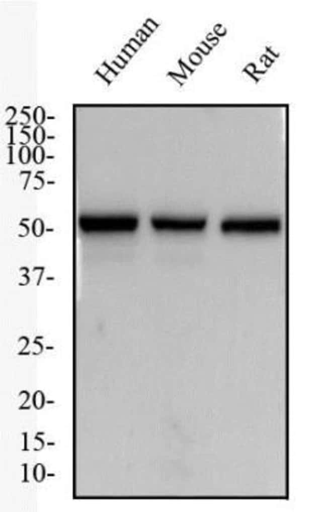 anti-NK1R, Polyclonal, Novus Biologicals:Antibodies:Primary Antibodies