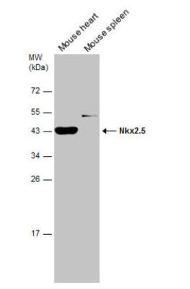 anti-NKX2.5, Polyclonal, Novus Biologicals 0.1mg; Unlabeled:Antibodies
