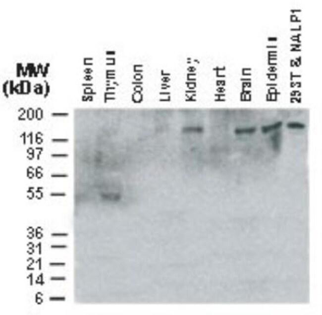NLRP1/NALP1 Rabbit anti-Human, Mouse, Polyclonal, Novus Biologicals:Antibodies:Primary