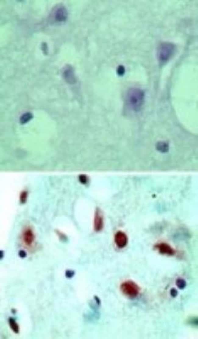 anti-NLRP2/NALP2, Polyclonal, Novus Biologicals:Antibodies:Primary Antibodies