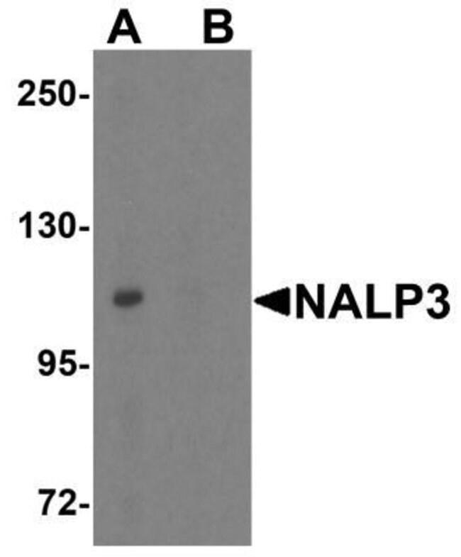 NLRP3/NALP3 Rabbit, Polyclonal, Novus Biologicals 0.1mg; Unlabeled:Life