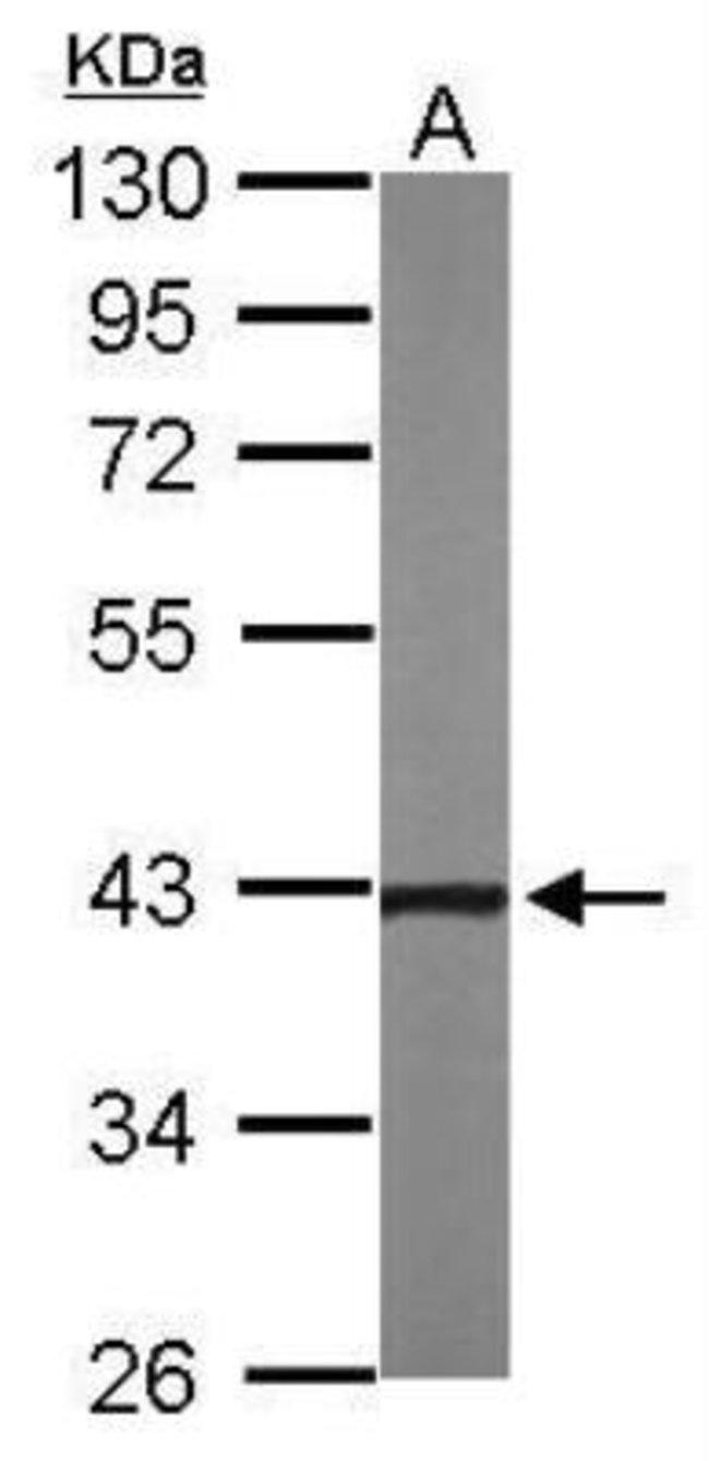 anti-NOV/CCN3, Polyclonal, Novus Biologicals 0.1mg; Unlabeled:Antibodies