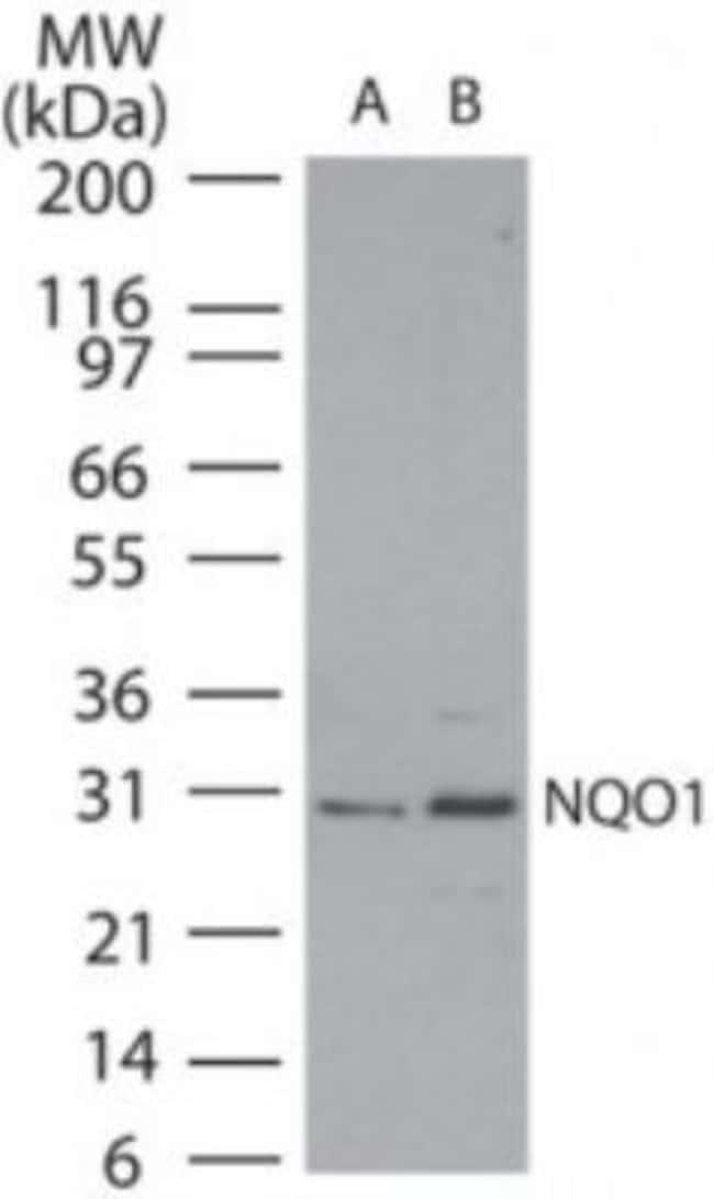 anti-NQO-1, Polyclonal, Novus Biologicals:Antibodies:Primary Antibodies