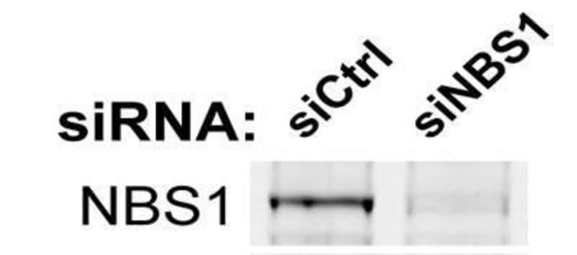 anti-Nbs1, Polyclonal, Novus Biologicals:Antibodies:Primary Antibodies