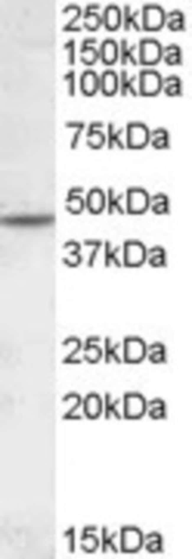 anti-Nicotinic Acetylcholine Receptor beta 2, Polyclonal, Novus Biologicals