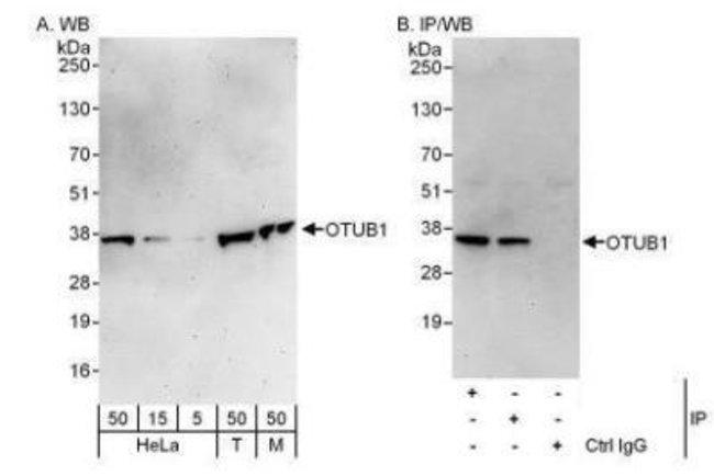 anti-Otubain-1, Polyclonal, Novus Biologicals 0.1mL; Unlabeled:Life Sciences