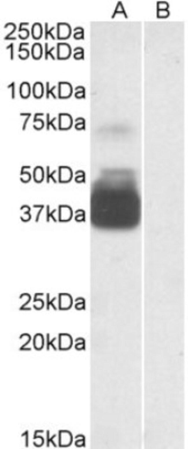 anti-P2X7/P2RX7, Polyclonal, Novus Biologicals 0.1mg; Unlabeled:Life Sciences