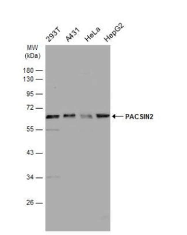 anti-PACSIN2, Polyclonal, Novus Biologicals 0.1mg; Unlabeled:Life Sciences