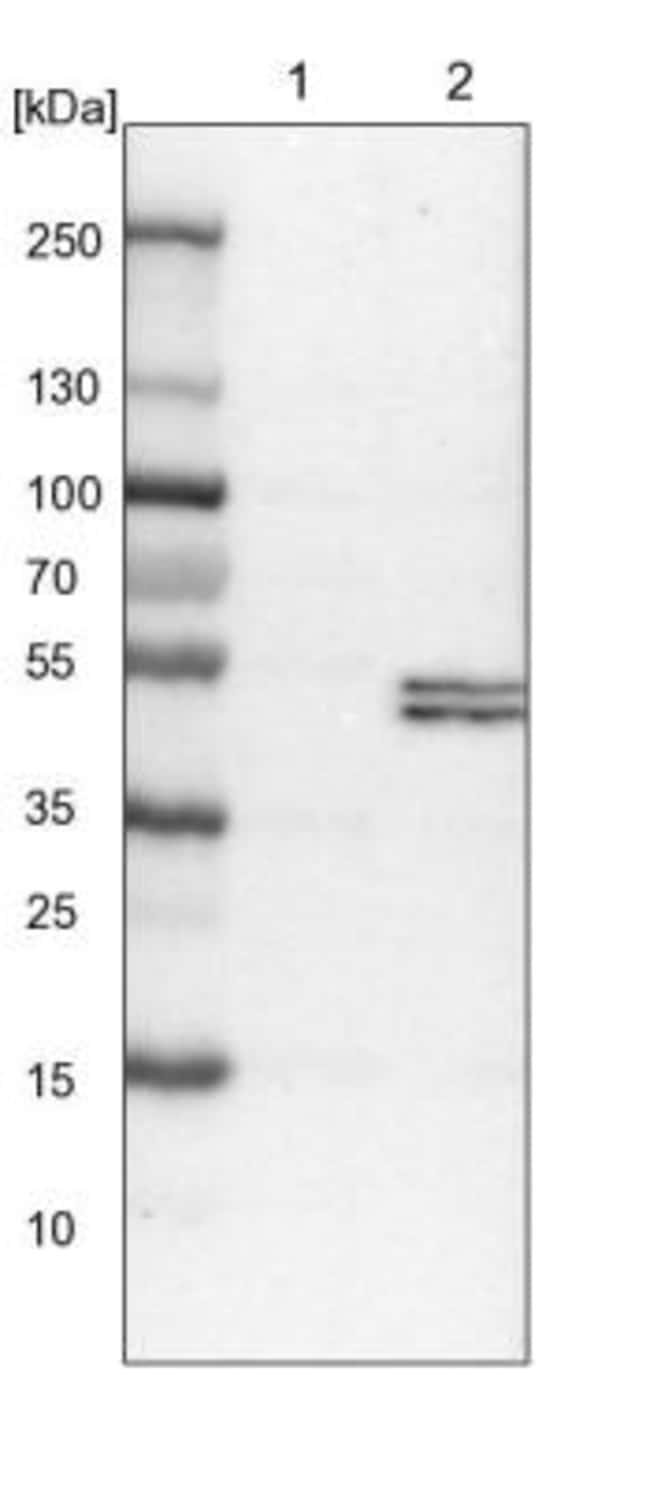 anti-PCYT2, Polyclonal, Novus Biologicals 0.1mL; Unlabeled:Life Sciences