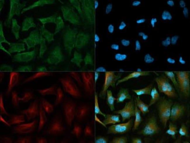 anti-PDK-1, Polyclonal, Novus Biologicals:Antibodies:Primary Antibodies